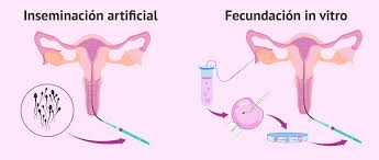 Laminas Inseminación artificial/in vitro